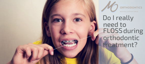 Do I really need to floss during orthodontic treatment? (Yes, and here are the reasons why)