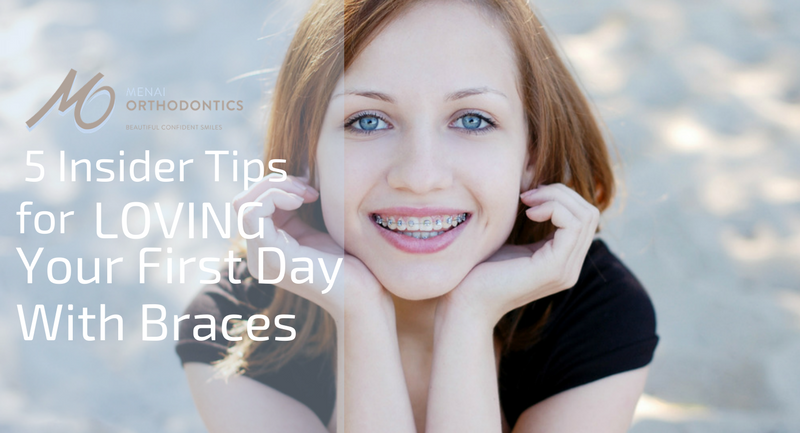 5 Insider Tips For Loving Your First Day With Braces